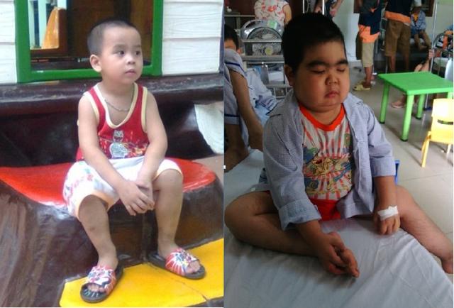 Căn bệnh đã khiến bé Vũ Thái biến dạng khiến nhiều người không còn nhận ra cậu bé kháu khỉnh, đáng yêu ngày nào.