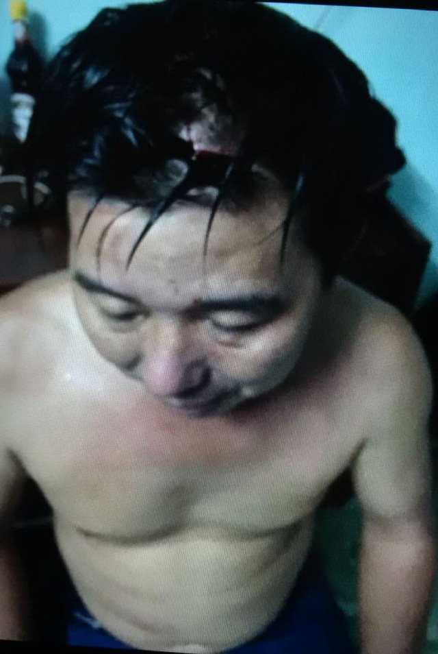Vết thương của ông Tuấn. (Ảnh: Dân trí)