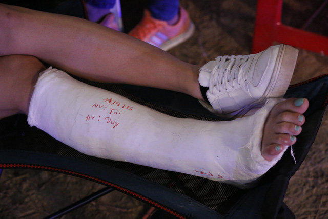 Chân Diệp Lâm Anh đang được bó bột do bị gãy xương mắt cá chân