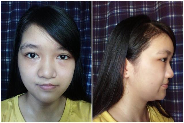 Hình ảnh của Phương Nhã trước khi phẫu thuật thẩm mĩ