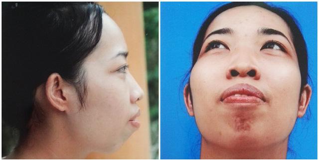 Minh Thu trước khi phẫu thuật. Cô có hàm răng hô giống với nhân vật Vũ Thanh Quỳnh ở mùa 1.