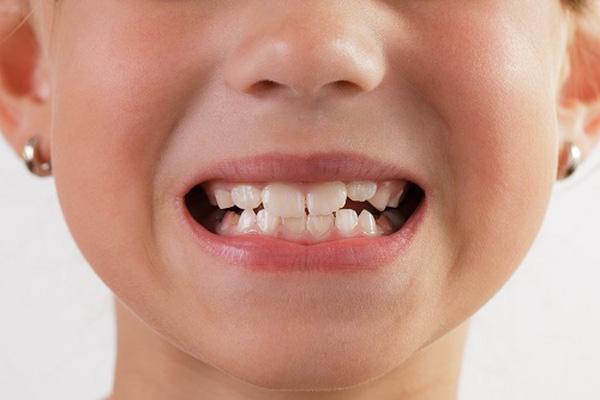 Kết quả hình ảnh cho người thường xuyên bị bệnh nghiến răng