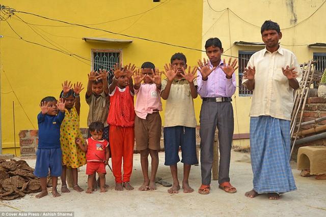Gia đình Ấn Độ với hàng loạt thành viên có 24 ngón tay chân - Ảnh 1.