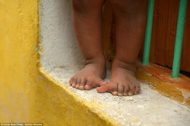 Gia đình Ấn Độ với hàng loạt thành viên có 24 ngón tay chân - Ảnh 10.