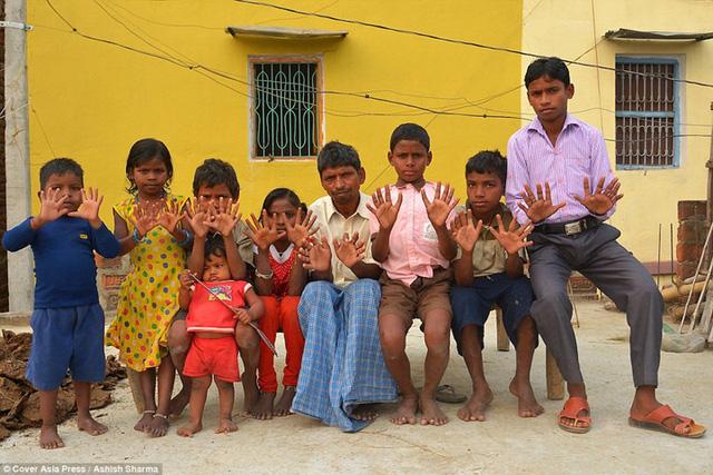 Gia đình Ấn Độ với hàng loạt thành viên có 24 ngón tay chân - Ảnh 12.