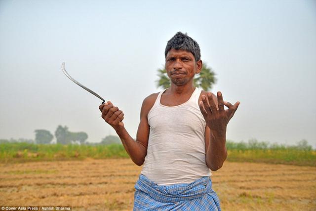 Gia đình Ấn Độ với hàng loạt thành viên có 24 ngón tay chân - Ảnh 6.