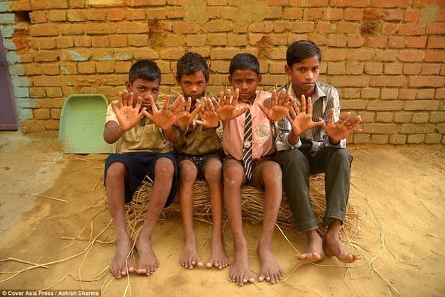 Gia đình Ấn Độ với hàng loạt thành viên có 24 ngón tay chân - Ảnh 7.