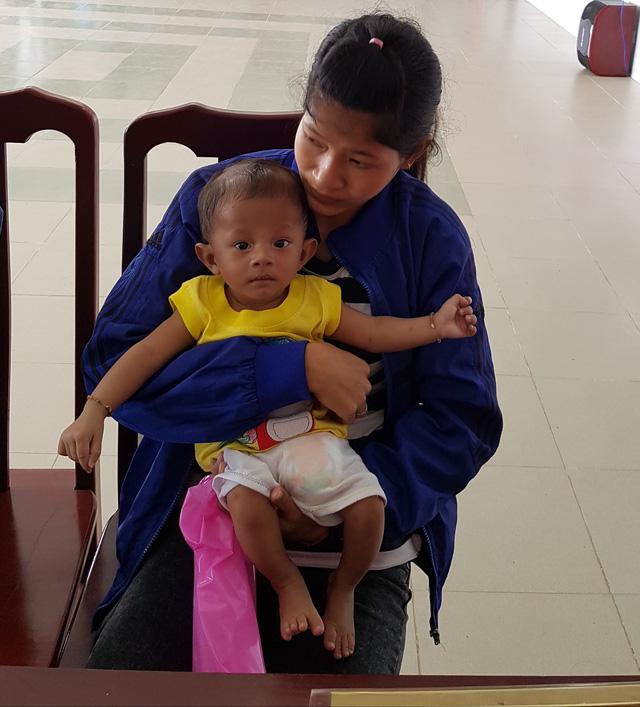 TTCE khám sàng lọc miễn phí cho trẻ em Trà Vinh - Ảnh 1.