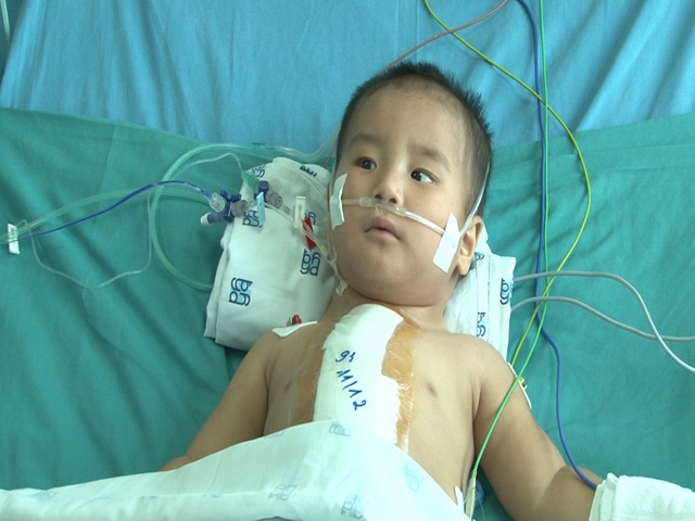 Tìm lại sự sống cho cháu bé 1 tuổi bị bệnh tim bẩm sinh - Ảnh 4.