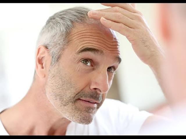 Nguyên nhân nào khiến tóc bạc sớm? - Ảnh 3.