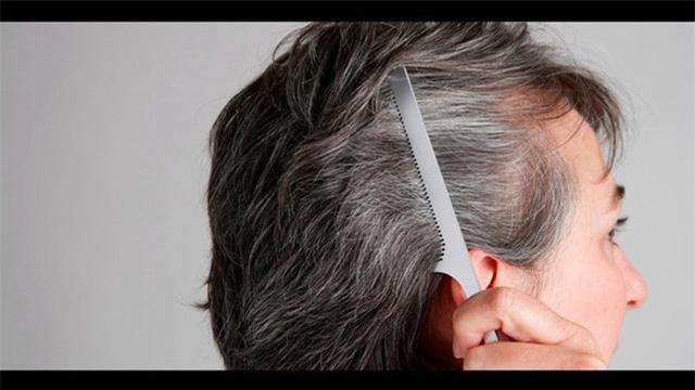 Nguyên nhân nào khiến tóc bạc sớm? - Ảnh 6.