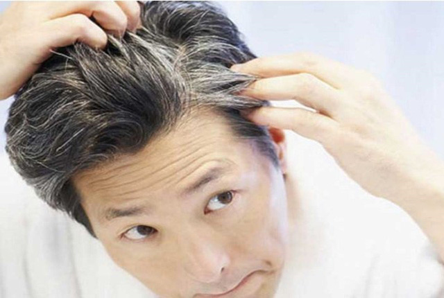 Nguyên nhân nào khiến tóc bạc sớm? - Ảnh 7.