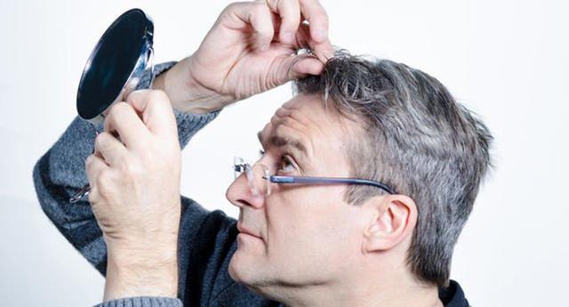 Nguyên nhân nào khiến tóc bạc sớm? - Ảnh 8.