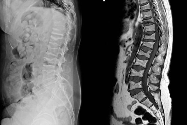 7 bệnh nghiêm trọng sau dấu hiệu của cơn đau lưng - Ảnh 3.