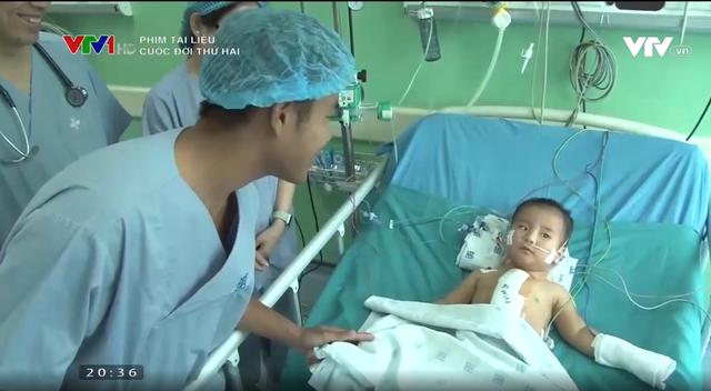 10 năm Trái tim cho em: Hành trình diệu kỳ mang đến cuộc đời thứ 2 cho trẻ thơ - Ảnh 2.