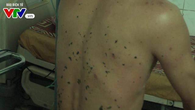 Nghệ An: 11 người thương vong do ong vò vẽ đốt - Ảnh 2.
