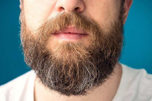 Nhìn râu đoán tình trạng sức khỏe - Ảnh 4.
