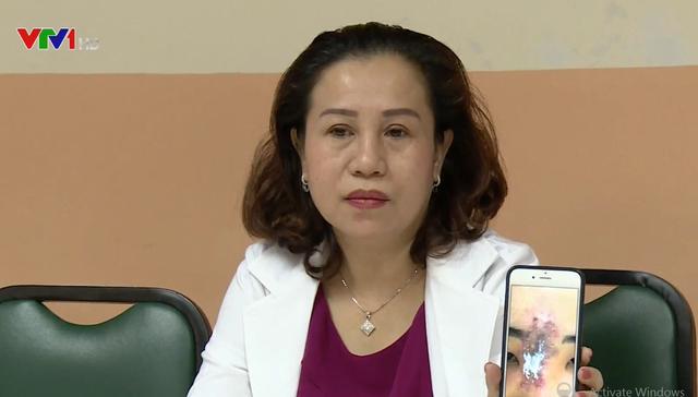 Nữ sinh 19 tuổi hoại tử mũi vì tiêm chất làm đầy - Ảnh 1.