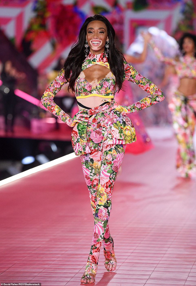 Siêu mẫu bạch tạng Winnie Harloe nổi bật tại Victorias Secret Fashion Show 2018 - Ảnh 3.