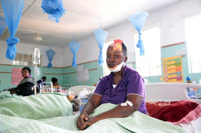 Tai nạn xe bus ở Zimbabwe, ít nhất 47 người thiệt mạng - Ảnh 5.