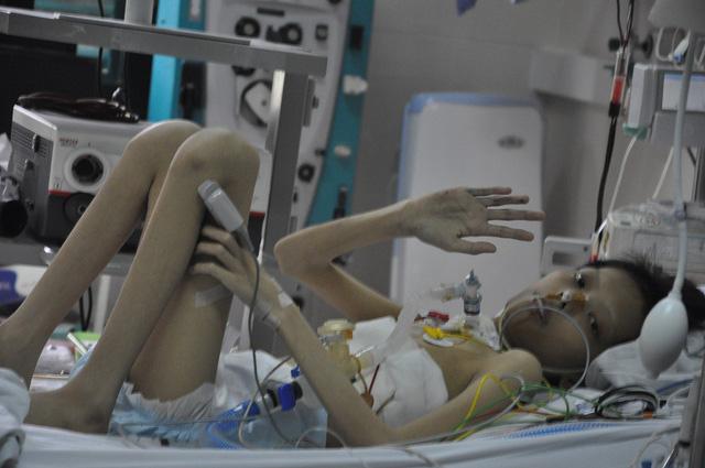 Ánh mắt cầu cứu khẩn thiết của cậu bé ghép phổi từ người chết não - Ảnh 5.