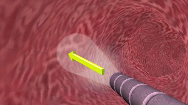 Những phương pháp điều trị ung thư mới - Ảnh 1.