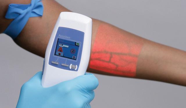 Trong tương lai Face ID sẽ được quét bằng mạch máu - Ảnh 1.