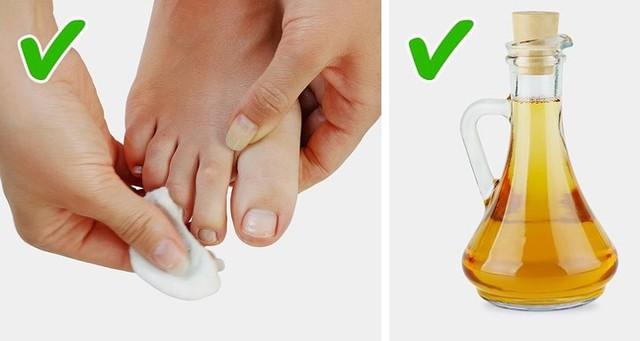 Những cách tự nhiên chữa móng chân mọc lệch đâm vào da thịt - Ảnh 2.
