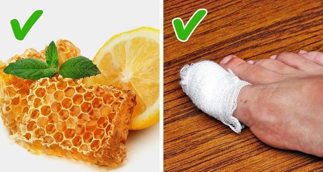 Những cách tự nhiên chữa móng chân mọc lệch đâm vào da thịt - Ảnh 4.