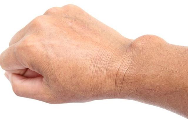 Đã tìm ra thủ phạm khiến bàn tay, ngón tay thường xuyên bị tê - Ảnh 4.
