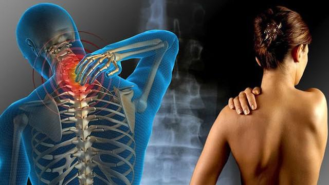 8 nguy cơ sức khỏe liên quan đến chứng đau nửa đầu - Ảnh 3.