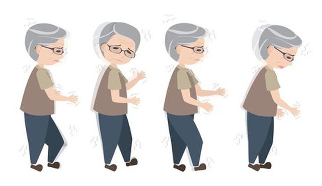 8 nguy cơ sức khỏe liên quan đến chứng đau nửa đầu - Ảnh 7.