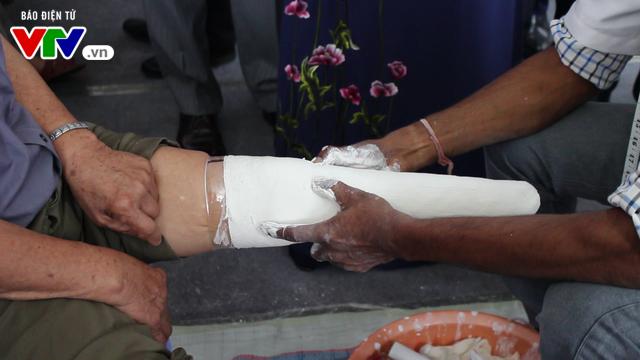 Bệnh viện Hữu nghị Lạc Việt: Lắp chân giả miễn phí cho thương bệnh binh và người khuyết tật - Ảnh 2.