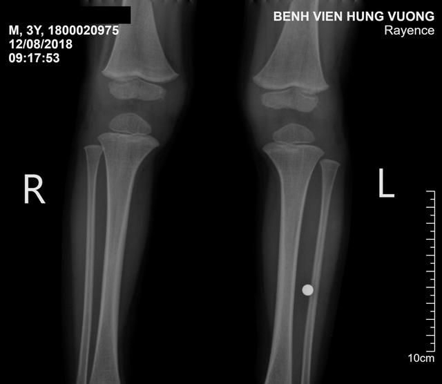 Phát hiện viên bi trong cẳng chân bé trai 3 tuổi - Ảnh 1.