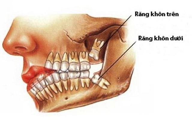 Đau răng khôn: Những điều quan trọng bạn cần biết - Ảnh 1.