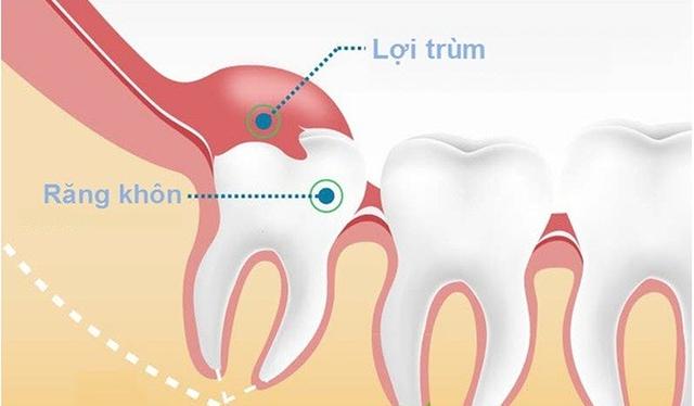 Đau răng khôn: Những điều quan trọng bạn cần biết - Ảnh 2.