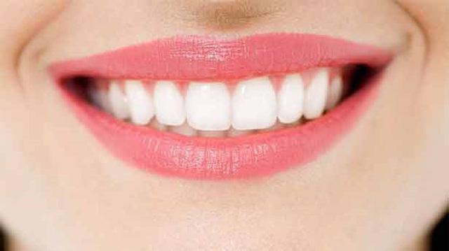 Đau răng khôn: Những điều quan trọng bạn cần biết - Ảnh 9.