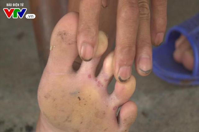 Khám sức khỏe cho 8.500 người dân vùng ngập úng ở Hà Nội - Ảnh 2.