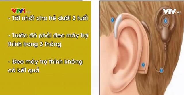 Ốc tai điện tử cải thiện khả năng nghe cho người nghe kém - Ảnh 1.