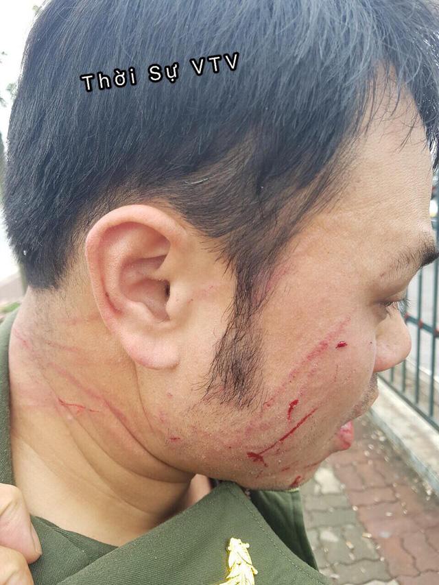 Nhân viên an ninh sân bay Nội Bài bị hành hung - Ảnh 2.