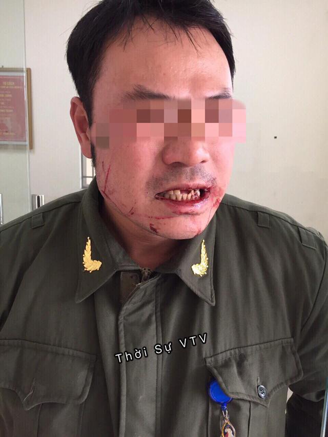 Nhân viên an ninh sân bay Nội Bài bị hành hung - Ảnh 1.
