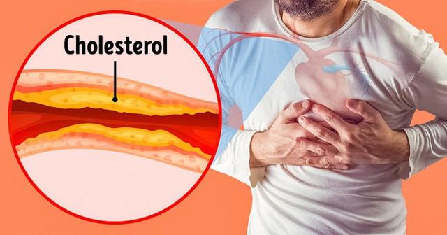 7 dấu hiệu nguy hiểm của tắc động mạch mà chúng ta thường bỏ qua - Ảnh 2.