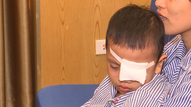 BV Mắt TƯ sẽ khám cho 1000 người và thực hiện phẫu thuật từ thiện 500 ca nhân ngày Thị giác thế giới - Ảnh 3.