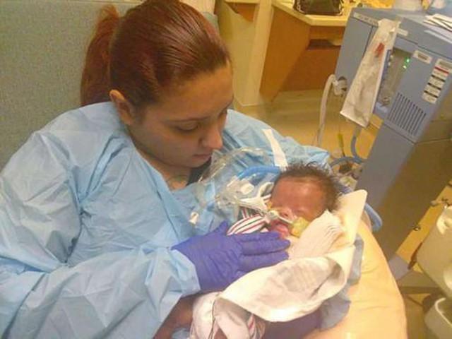 Mỹ: Em bé sơ sinh đầu tiên ở Texas được ghép da thành công - Ảnh 1.