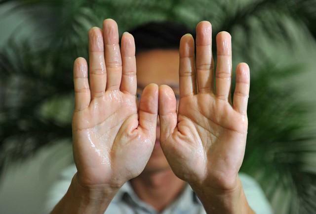 TPBVSK Ích Khí Khang: Khắc tinh của triệu chứng tăng tiết mồ hôi ở trẻ nhỏ và ngưới lớn - Ảnh 3.