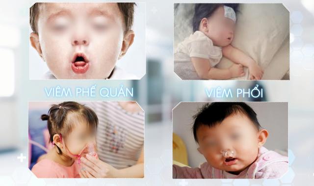 Tư vấn trực tuyến: Phòng bệnh hô hấp ở trẻ lúc giao mùa và điều trị đúng cách - Ảnh 1.