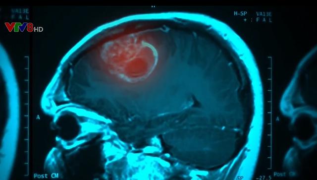 Bụi mịn do không khí ô nhiễm làm tăng nguy cơ ung thư não - Ảnh 2.
