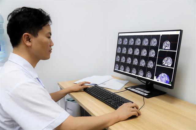 Dấu hiệu cảnh báo bệnh u não - Ảnh 1.