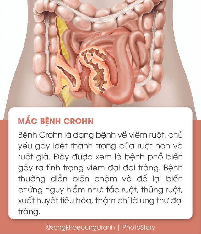 5 nguyên nhân phổ biến gây viêm đại tràng - Ảnh 4.