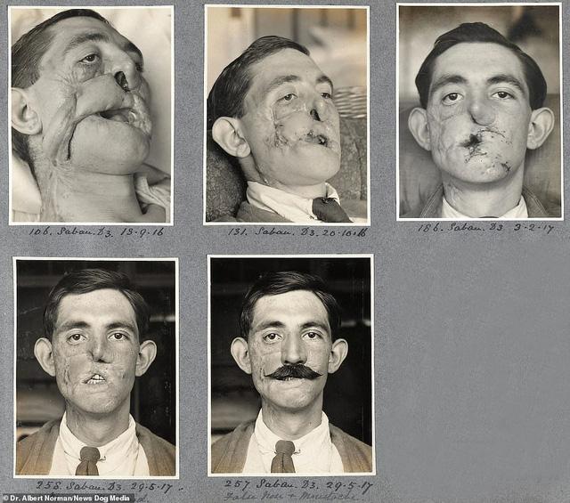 Hé lộ những thành công đầu tiên của cha đẻ ngành phẫu thuật thẩm mỹ - ảnh 1